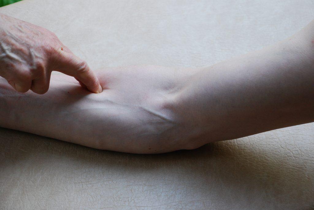Sidekudos Kyynävarren myofaskiaalinen piste, ANCA